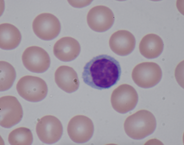 Lymphocyte surrounded by red blood cells.